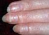 localisation: Nagelplatte (Fingerrnagel), Diagnose: Mees-Streifen