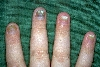 localisation: Fingernagel, Diagnose: Pachyonychia congenita hereditaria