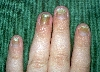 localisation: fingernail, diagnosis: Pachyonychia Congenita Hereditaria