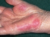 Localisation: mains, Diagnostic: Erythema Elevatum Diutinum