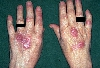 localisation: hands, diagnosis: Erythema Elevatum Diutinum