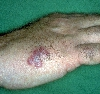 localisation: back of the hands, diagnosis: Herpes Simplex