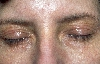 localisation: Augenlider, Diagnose: Syringom, multipel, Xanthelasma