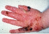 localisation: back of the hands, diagnosis: Epidermolysis Bullosa Hereditaria
