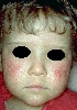 localisation: cheek, diagnosis: Rothmund-Thomson Syndrome