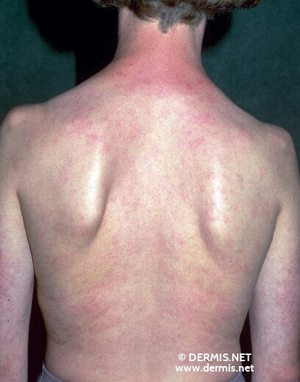 localisation: back diagnosis: Atopic Eczema