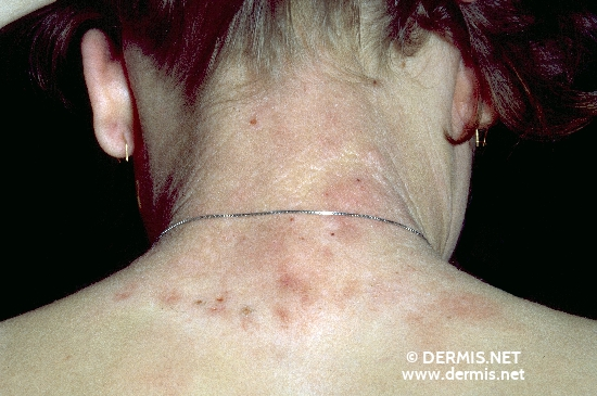 localisation: back of neck diagnosis: Hyalinosis Cutis et Mucosae