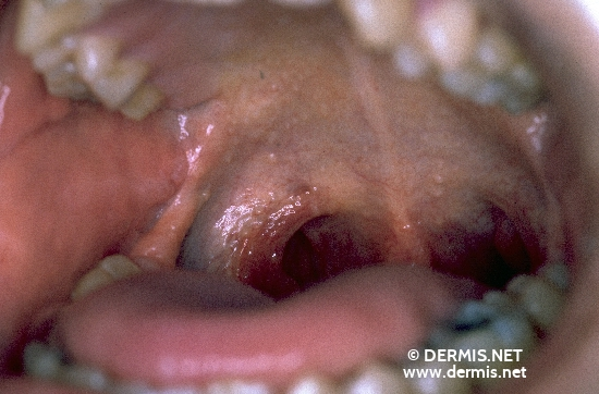 localisation: palate diagnosis: Hyalinosis Cutis et Mucosae