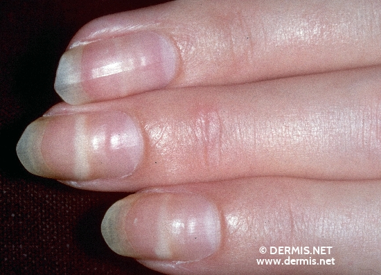 localisation: nail plate of the finger diagnosis: Mees' Stripes