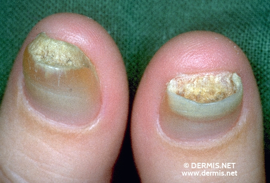 localisation: fingernail diagnosis: Pachyonychia Congenita Hereditaria