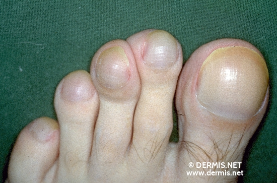 localisation: toenail diagnosis: Watchglass Nails