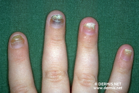 localisation: Fingernagel Diagnose: Pachyonychia congenita hereditaria