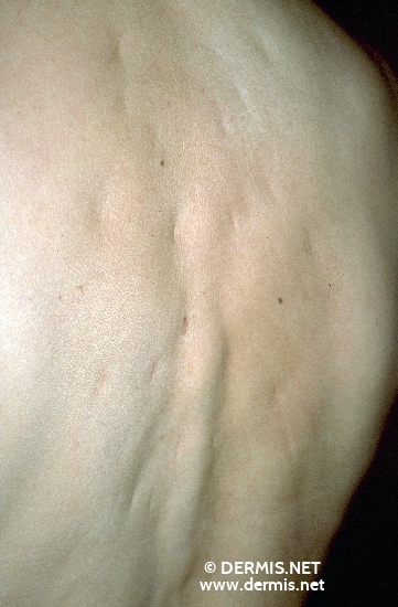 localisation: back diagnosis: Anetoderma, Pellizzari Type