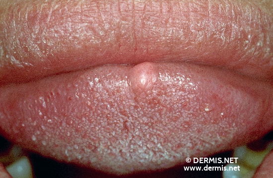 localisation: tongue diagnosis: Fibroma Linguae