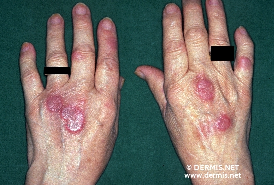 localisation: hands diagnosis: Erythema Elevatum Diutinum