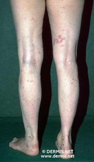 localisation: legs diagnosis: Erythema Elevatum Diutinum