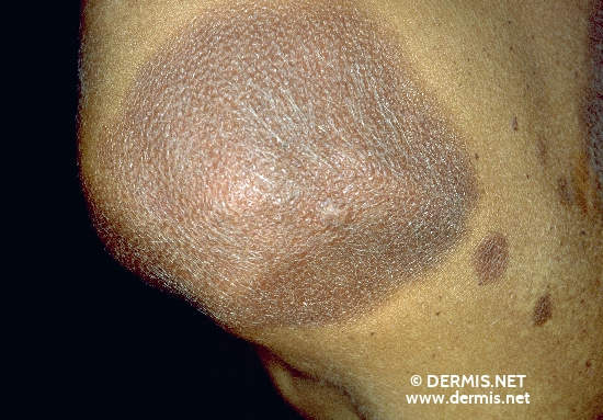 localisation: Schulterregion Diagnose: Melanosis neurocutanea