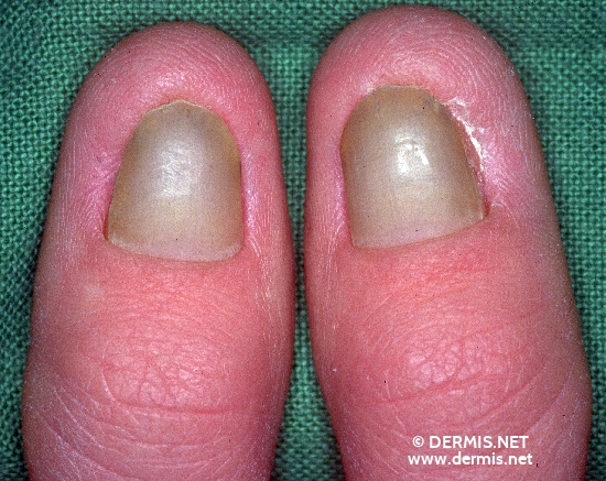 diagnosis: Candida Onychomycosis and Paronychia
