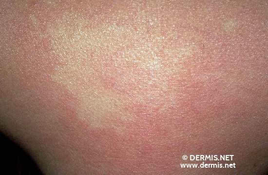 localisation: back of neck diagnosis: Nevus Anaemicus
