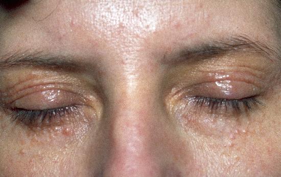 DermIS - Syringoma, Disseminated Xanthelasma (image)