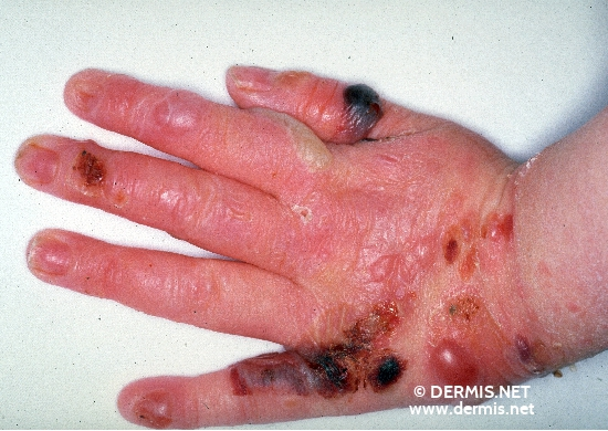 localisation: Handrücken Diagnose: Epidermolysis bullosa hereditaria