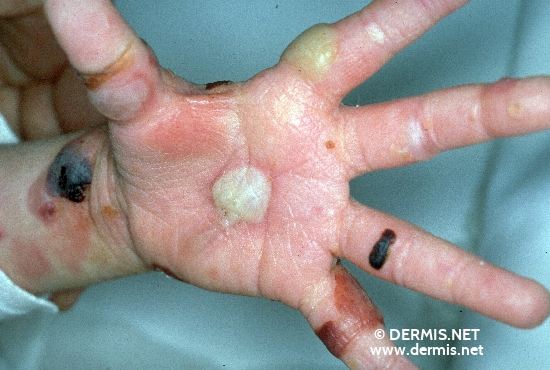 localisation: palms diagnosis: Epidermolysis Bullosa Hereditaria