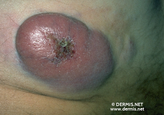localisation: buttocks diagnosis: Centroblastic-Centrocytic Lymphoma