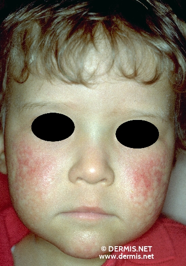localisation: cheek diagnosis: Rothmund-Thomson Syndrome
