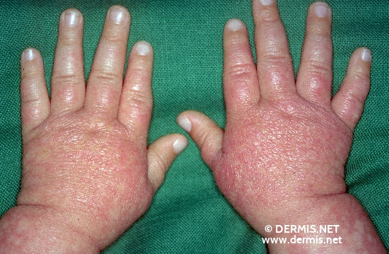 localisation: finger diagnosis: Rothmund-Thomson Syndrome