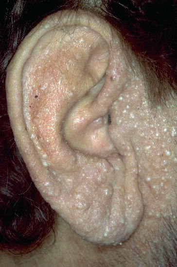 localisation: ear diagnosis: Trichoepithelioma Papulosum Multiplex