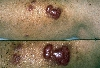 localisation: lower leg, diagnosis: Skin Metastases of Tumours of Internal Organs
