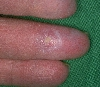 Diagnose: Calcinosis cutis, CREST-Syndrom