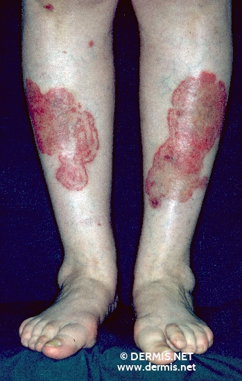localisation: lower leg diagnosis: Tinea Corporis