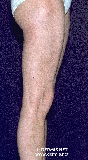 localisation: legs diagnosis: Morphea, Linear