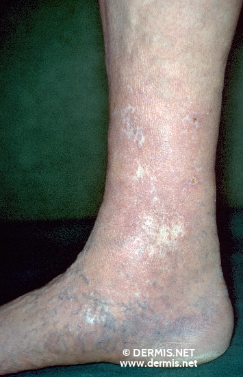 localisation: lower leg diagnosis: Corona Phlebectatica Atrophie Blanche