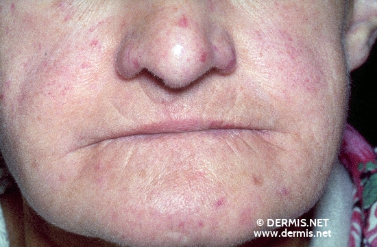 dermis - crest syndrome (image), Human Body