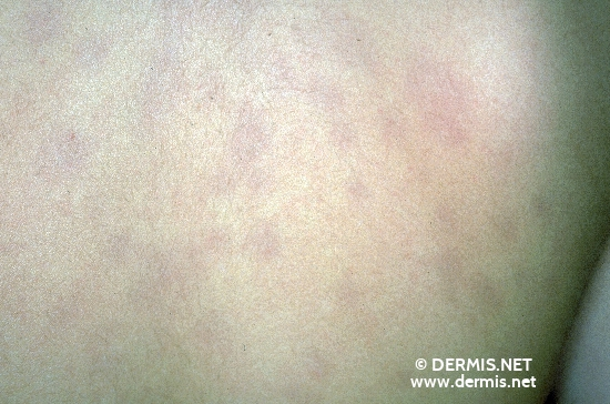 diagnostic: Anetoderma Erythematosa,