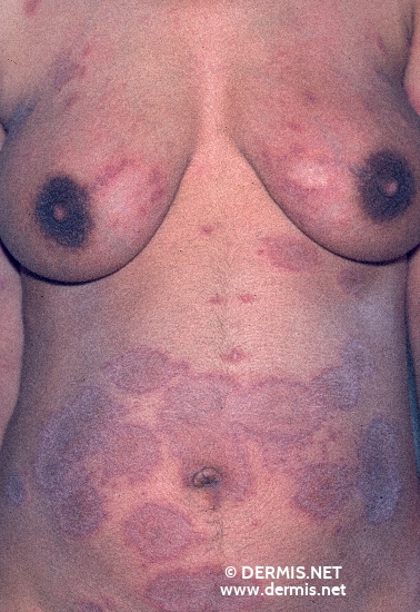 localisation: Stamm Diagnose: Herpes gestationis