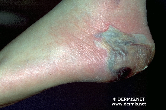 diagnostic: Ucère de decubitus Diabetic Gangrene