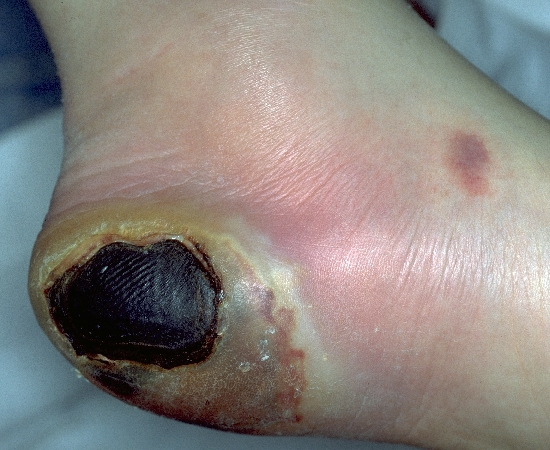 Diabetic Foot Ulcer - WebMD