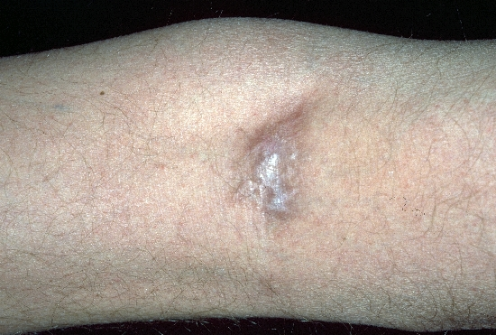 localisation: hollow of the knee diagnosis: Kaposi's Sarcoma