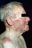localisation: face, diagnosis: Chronic Lymphocytic Leukaemia (CLL)