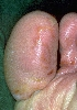 localisation: toe, diagnosis: Larva Migrans Cutanea
