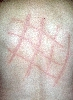 localisation: back, diagnosis: Urticaria Factitia