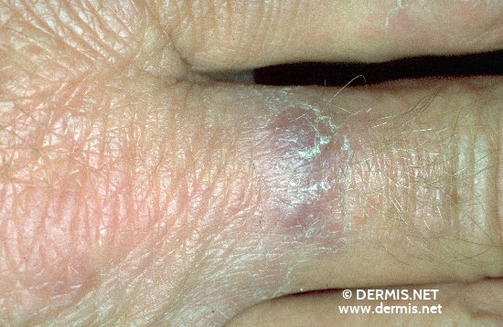 diagnosis: Foreign Body Granuloma