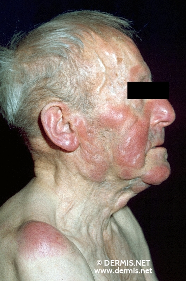 localisation: face diagnosis: Chronic Lymphocytic Leukaemia (CLL)