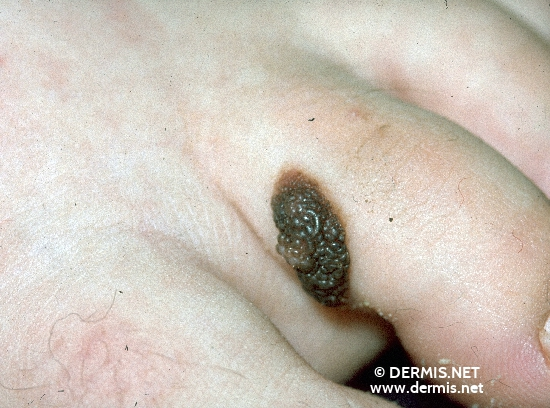 localisation: toe diagnosis: Nevocytic Nevus