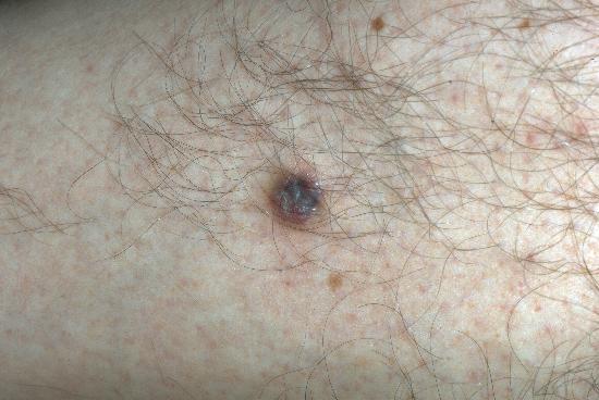 Dermatofibrome