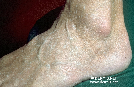 localisation: back of the feet diagnosis: Stucco Keratosis