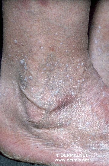 localisation: lower leg diagnosis: Stucco Keratosis